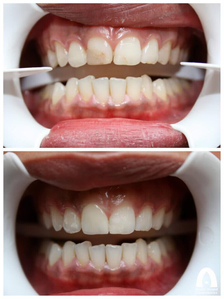 Estetisk Tandvård - Fasad framtand
