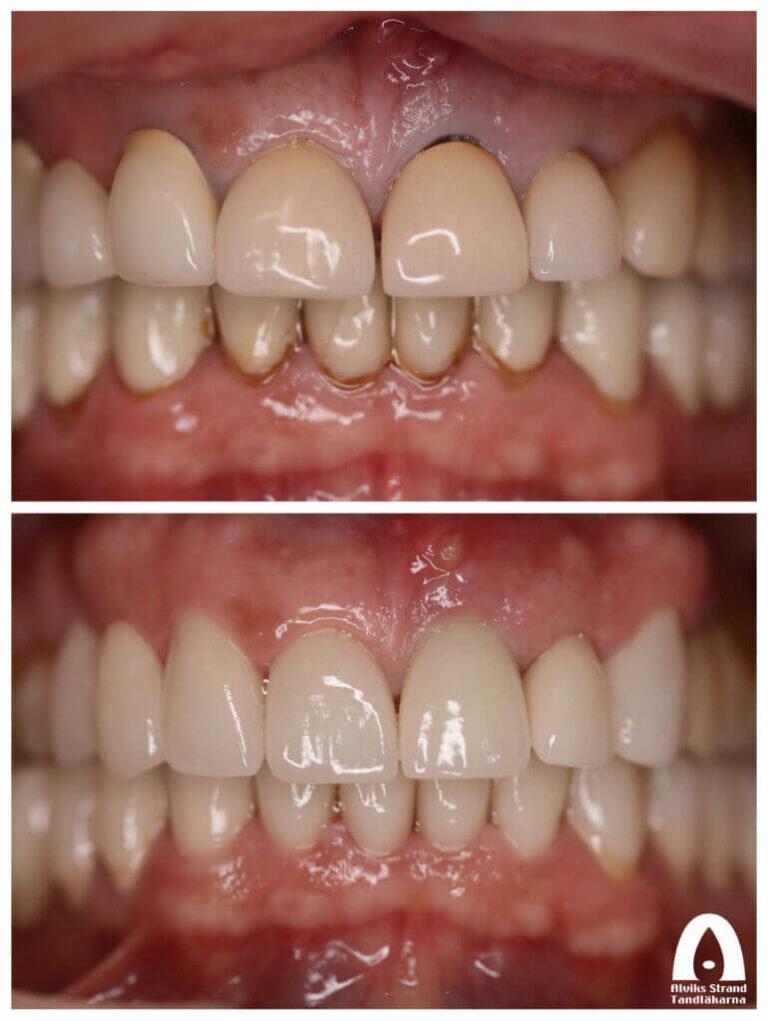 Estetisk tandvård - Byte av gamla kronor överkäken
