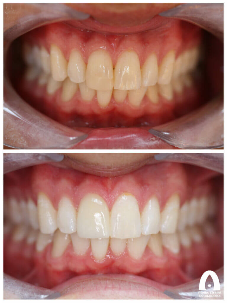 Estetisk tandvård - Fasad på framtand med blekning