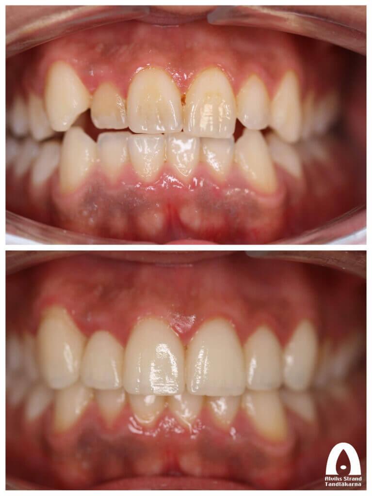 Estetisk tandvård - Fasader framtänder överkäken