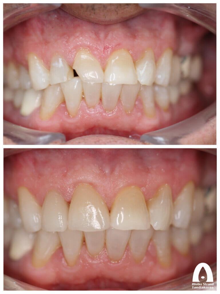 Estetisk tandvård - Fasader på framtänderna
