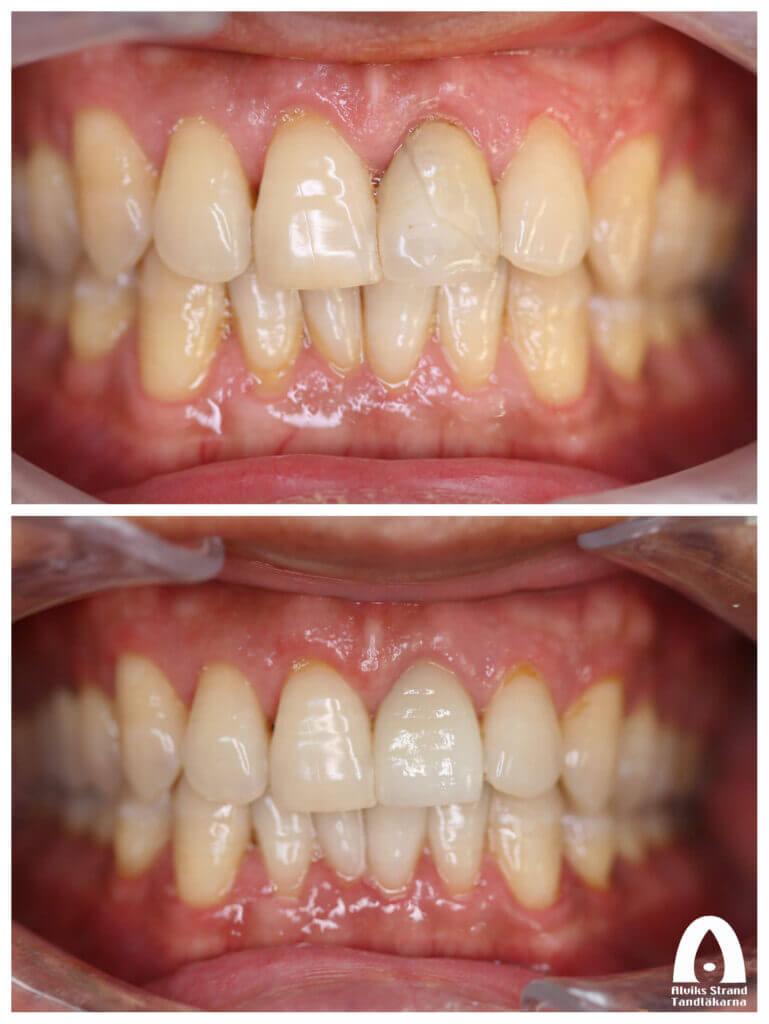 Estetisk tandvård - Fraktur av en framtand