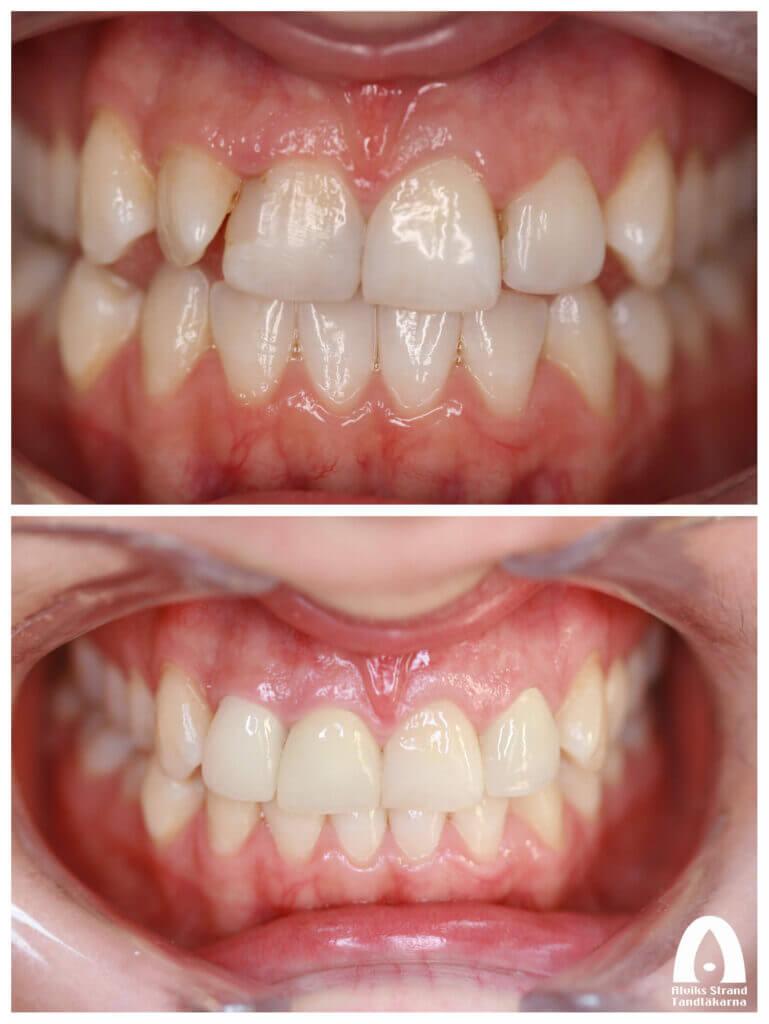 Estetisk tandvård - Fyra framtänder