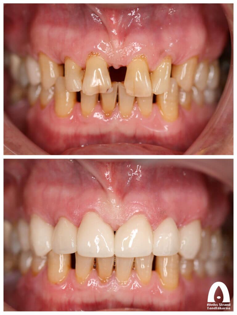 Estetisk tandvård - Glesställning överkäken