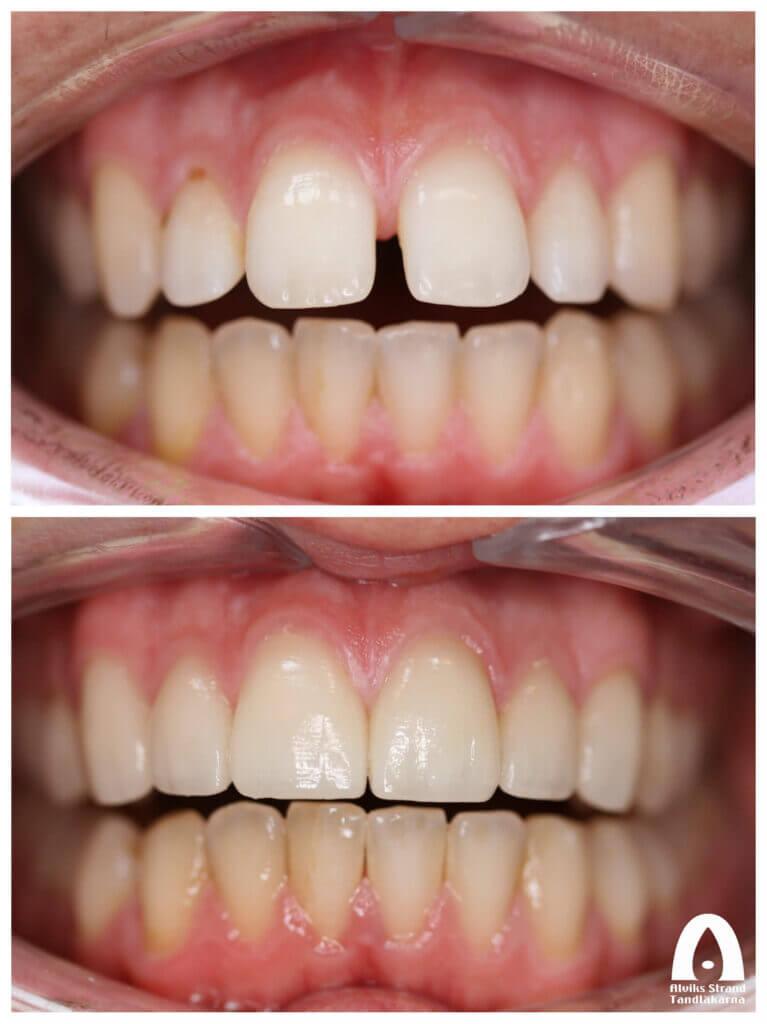 Estetisk tandvård - Mellanrum mellan tänder