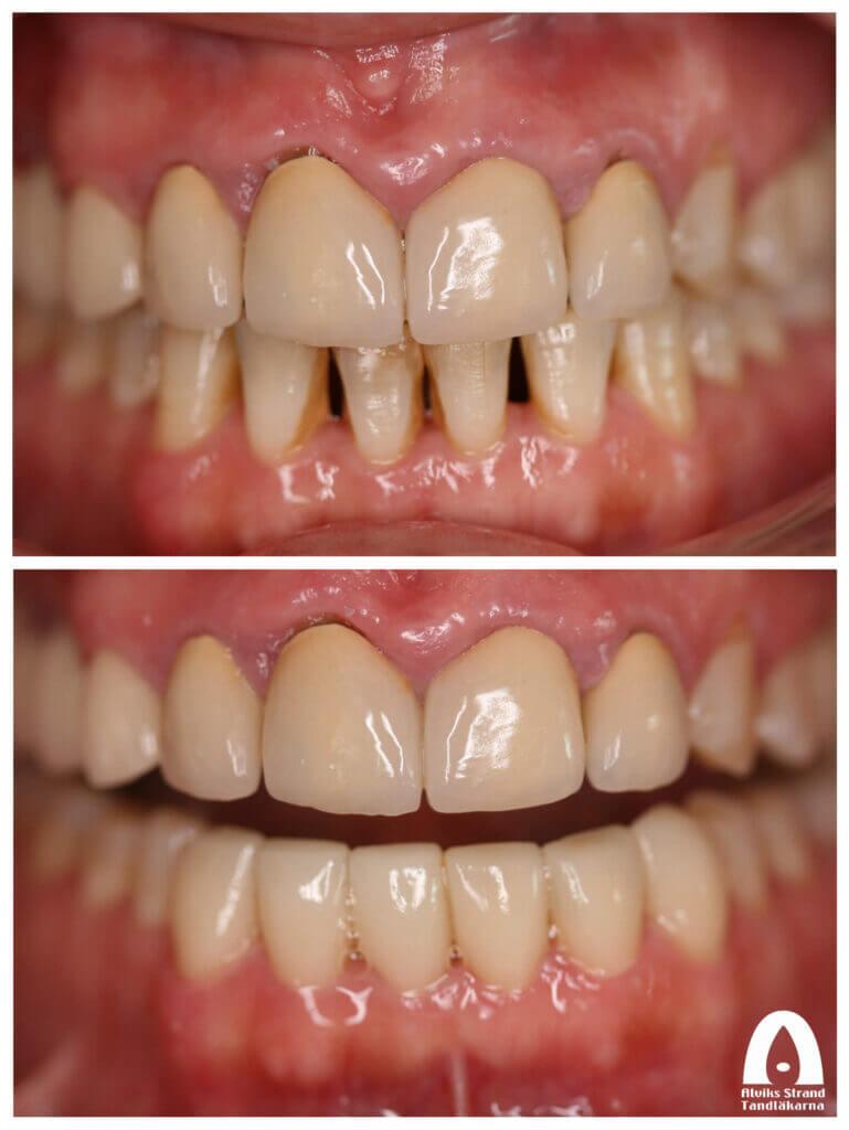 Estetisk tandvård - Sex framtänder i underkäken