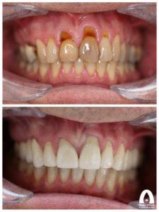 Estetisk tandvård - Skadade framtänder