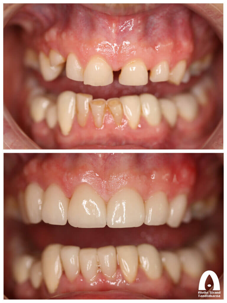 Estetisk tandvård - Smile makeover överkäke och underkäke