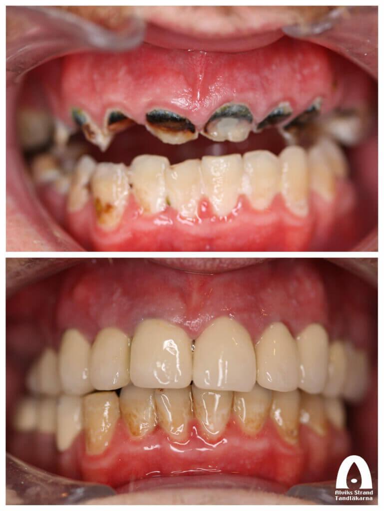 Uppbyggnad av skadade tänder med kronor