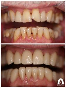 Estetisk tandvård - Smile makeover