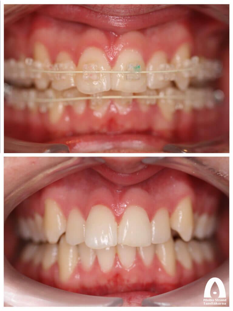 Tandställning med Six months smile