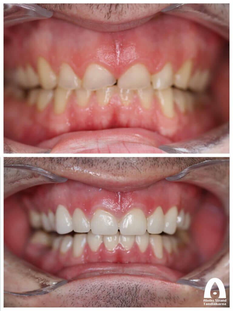 Uppbyggnad av nedgnisslade tänder med kronor