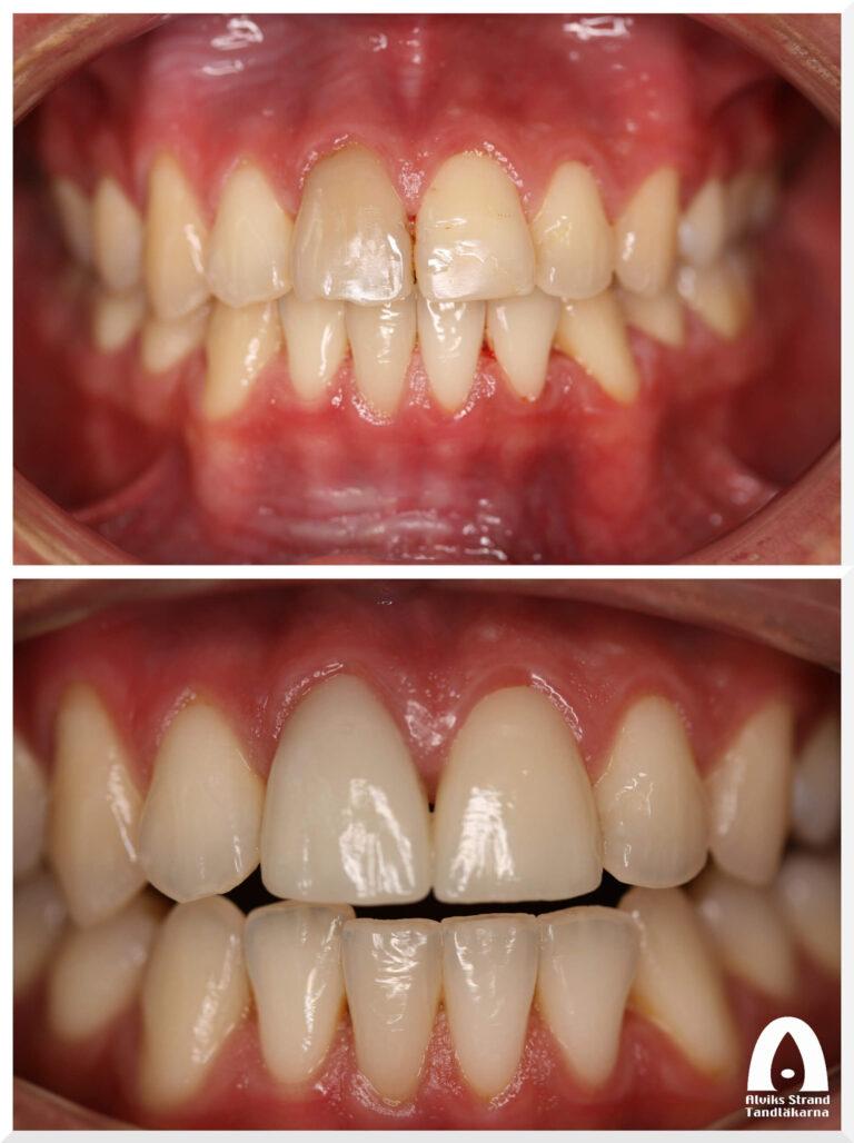Estetisk tandvård - Fasader framtänder