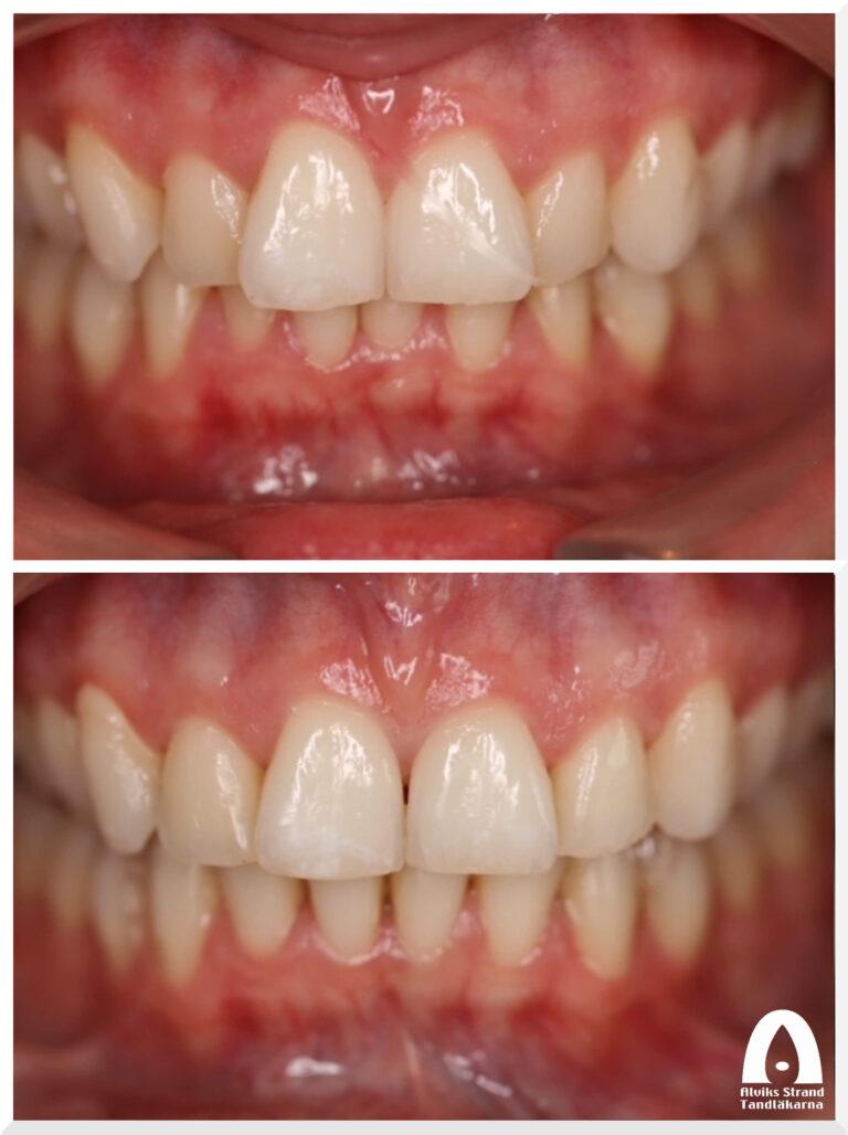 Estetisk tandvård - Osynlig tandställning